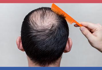 saç aşısı ve ekimi arasındaki fark