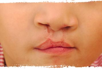 dudak-yariklari