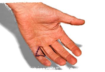parmak-kopmasi-ameliyati