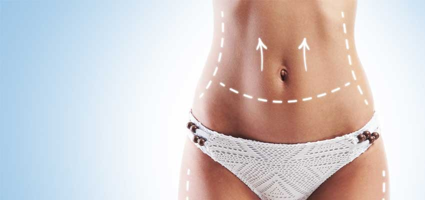 Vaser Liposuction Ameliyatı